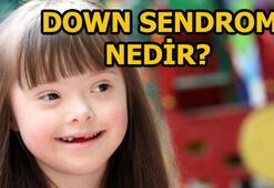Down Sendromu nedir Down Sendromu günü ne zaman 21 Mart kopya sorusu ve cevabı