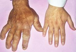 Akromegali nedir