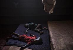 Zimbabvede kolera salgını 32 can aldı