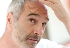 Saç neden beyazlar Saç beyazlamasının nedenleri nelerdir