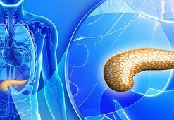 Türk bilim insanları, pankreas kanserine karşı etken madde geliştirdi