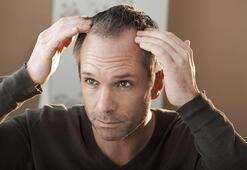 Orta yaş ve sonrası erkeklerde oluşan saç kayıpları önlenebilir mi