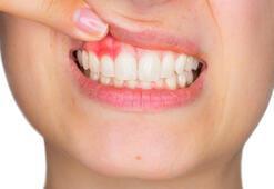 Diş eti kanaması hangi hastalıklara işaret ediyor