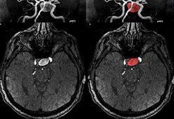Beyin anjiyosu nedir, neden yapılır