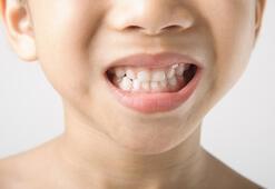 Çocuklarda diş gıcırdatma problemi kalıcı hasara neden olabilir