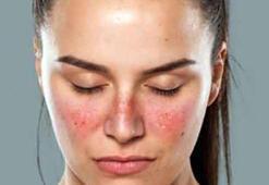 Kelebek hastalığı nedir Tedavisi var mı