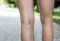 Bacaklardaki varisler tehlikeli midir