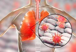 H1N1 virüsü nedir