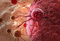 Bağırsak kanserinin görülme yaşı düşüyor