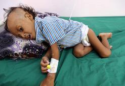 Yemende 85 bin çocuk açlıktan öldü