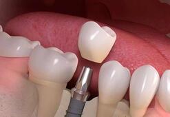 Hangi durumlarda implant yapılmalıdır