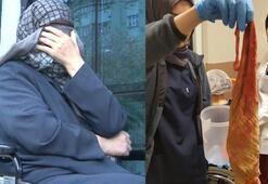 Kadının karnından çıktı Doktorlar dehşete düştü…