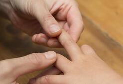 El ayak ağız hastalığı nasıl önlenir
