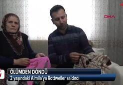 Rottweilerın saldırdığı 2 yaşındaki Almila ölümden döndü
