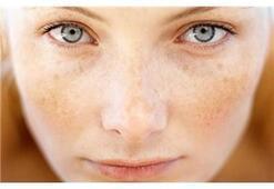 Güneş cildiniz için tehlike haline gelmesin