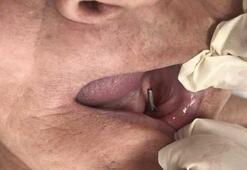 28 yıl boyunca ağzında vida taşımış