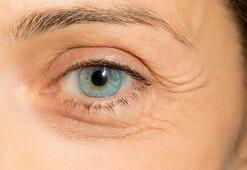 Gözlerdeki katarakt problemine dikkat