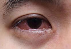 Göz alerjisi nelere yol açar