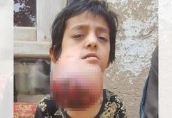Afganistanlı küçük Habibe yardım bekliyor