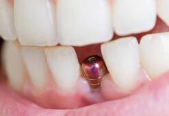 İmplant tedavisi sonrası ağız bakımı nasıl olmalıdır