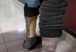 Otobüste bacağına sardığı uyuşturucu ile yakalandı