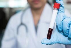 Karaciğer nakline neden olan hastalık: Hepatit C
