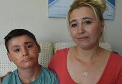 Balık derisi hastası Kayraya yardım yağdı