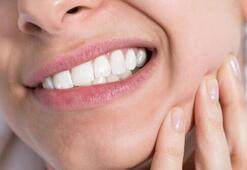 Dişlerde oluşan çürüklere dikkat