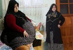 250 kilodan bir buçuk yılda 95 kiloya düştü
