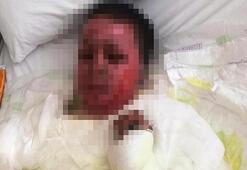 Somalide patlamada yaralanan Hamda, kurtarılamadı