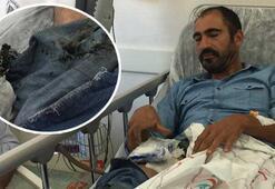 Cebinde bomba gibi patlayan cep telefonu hastanelik etti