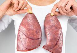 Sigara içenlerde akciğer sertleşmesi kanserden daha tehlikeli