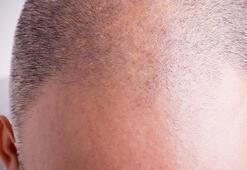 Saç ekimi operasyonu nerede yapılmalı