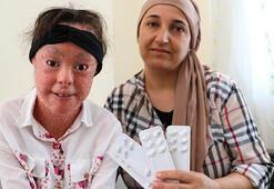 Balık pulu hastaları yerli ilaca kavuştu
