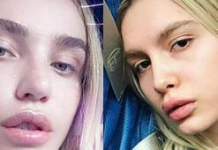 Gülşenin dudaklarına ne oldu