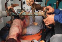 Yer: Çanakkale... Bacağına saplandı