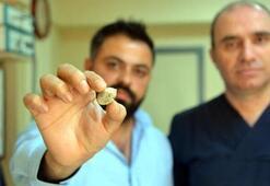 Doktorları bile şaşırttı Tükürük bezinden 3 santimetre çapında taş çıktı