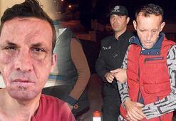 Yüz nakli operasyonu ile tanınan Sertin eşinin patronu da tutuklandı