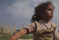 Tel Abyadda mayın patladı Yaralılar var