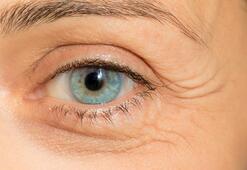 Astigmat ve hipermetrop göz çevresini kırıştırıyor