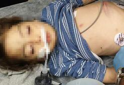 Üzerine motosiklet düştü' denilen minik Nurcanı üvey annesi dövmüş