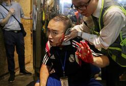 Siyasetçinin kulağını ısırarak koparan saldırgan gözaltında
