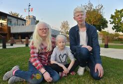 Albinoların güneş kremi isteği