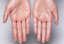 Aşırı el terlemesi ETS ile tedavi edilebilir mi