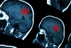 Beyin kanserleri neden gittikçe artıyor