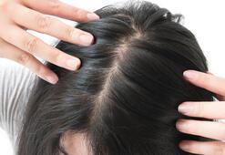 Saç dökülmesi ne zaman tehlikeli olur