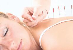 Doğal yöntem Akupunktur