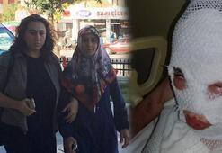 Komşularına kezzapla saldıran kadına hapis cezasında Pişman olmama vurgusu