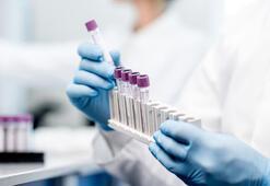 Enfeksiyon hastalıkları nedir, neye bakar Klinik mikrobiyoloji bölümü (intaniye) doktoru hangi hastalıklara bakıyor