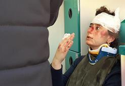Kontrolden çıkan otomobil öğrencilerin arasına daldı: 4 yaralı